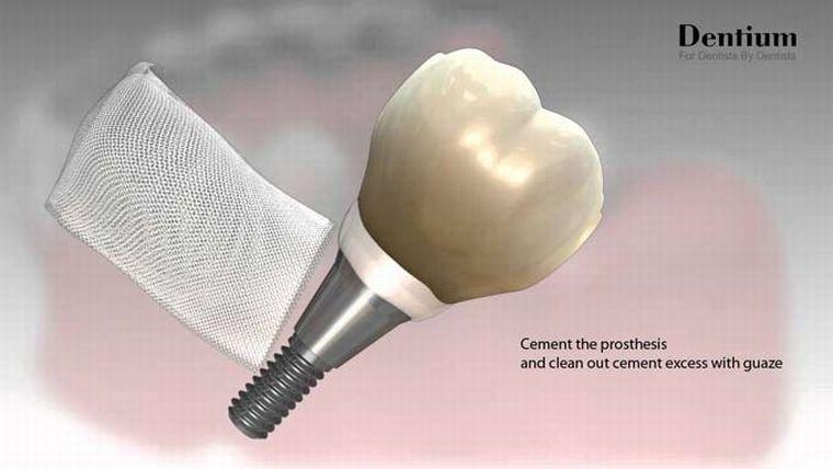 Имплант implantium