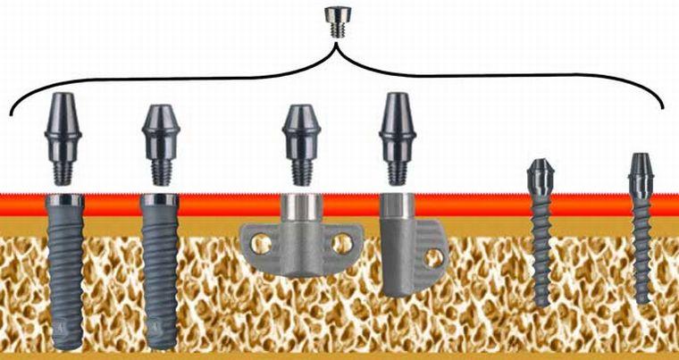 Дентальное протезирование