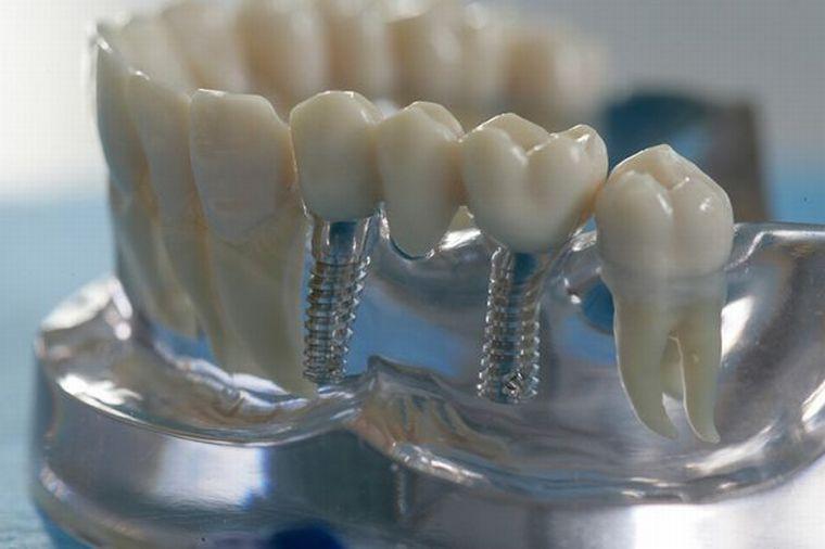 Зубной ряд