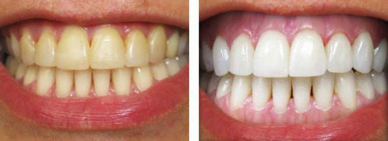 Зубы до и после отбеливания