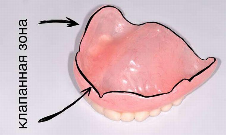 Зубная челюсть на присосках