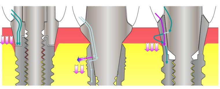 Распределение нагрузки в имплантах Dentium