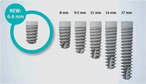 Размерная сетка имплантов