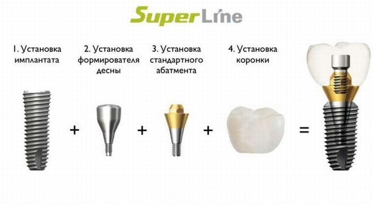 Импланты Super-Line