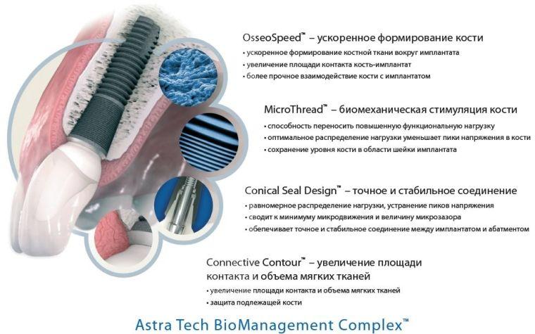 технологии имплантостроительства