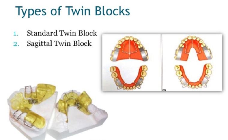 твин блок ортодонтия