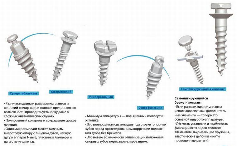 Виды мини имплантов