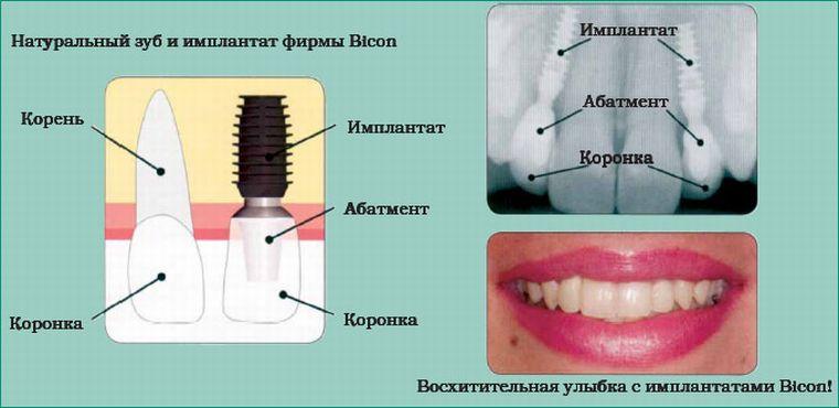 Установленный имплант и зуб