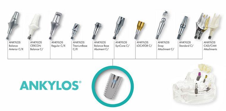 Виды имплантов Анкилоз