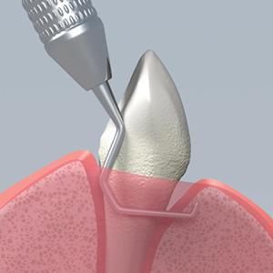 Ручная очистка зубов