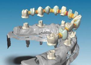 Строение искусственных зубов
