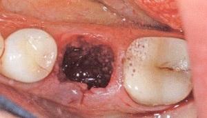 альвеолит лунки