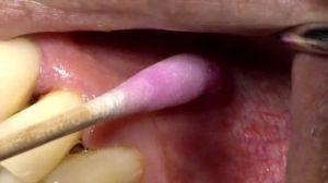 анестетик в стоматологии