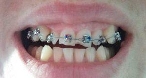 коррекция зубов