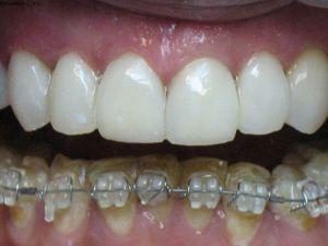 коррекция нжней челюсти