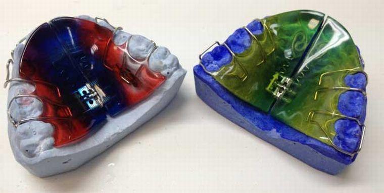 Ортодонтическое съемное устройство
