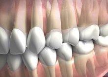 Смыкание зубов