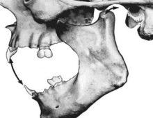Движение челюсти
