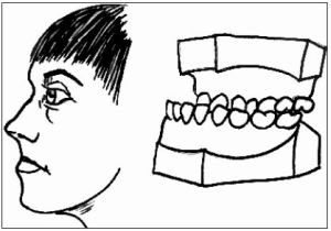 Увеличенная нижняя челюсть