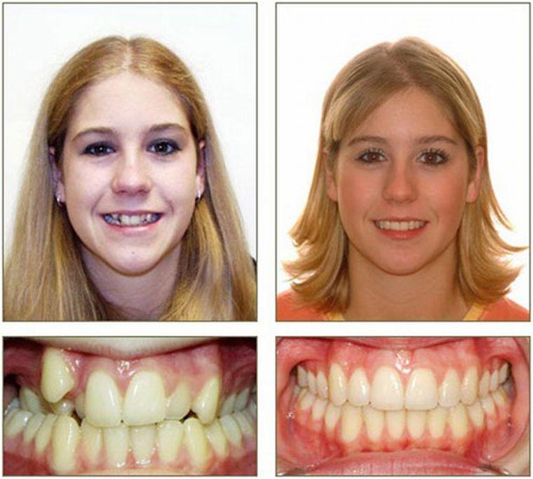 До и после остеотомии