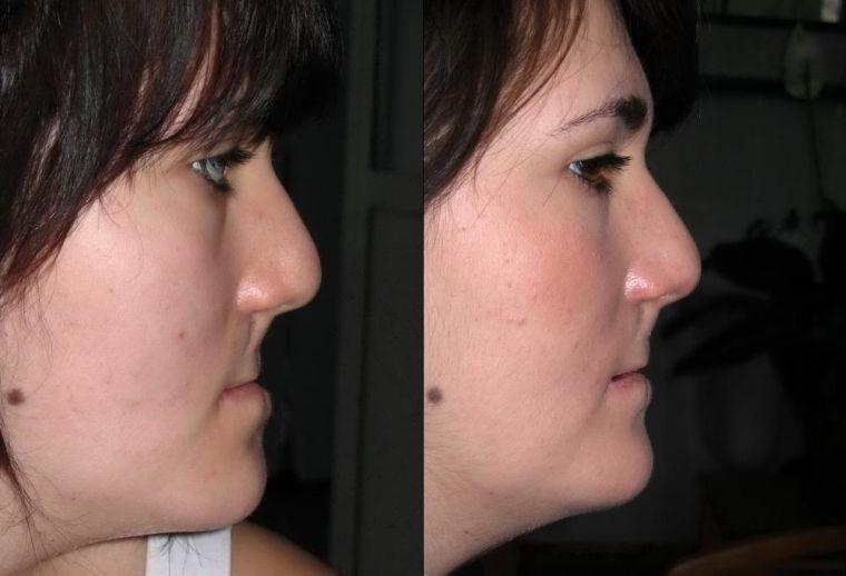 Коррекция челюсти