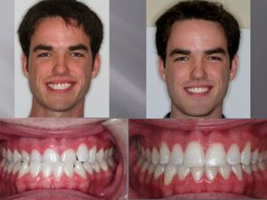До и после коррекции прогении