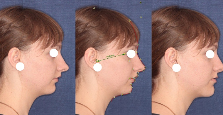 До и после остеотомии челюсти