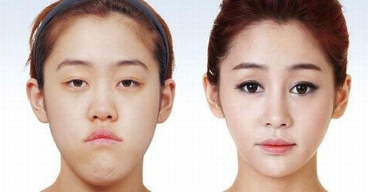До и после коррекции челюсти