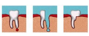 удаление корня зуба