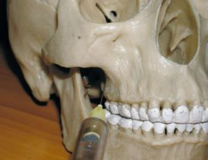 каловый запах изо рта лечение