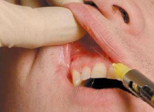 инфраорбитальная анестезия