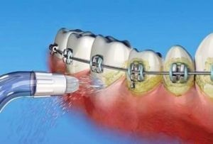 очистка зубов ирригатором