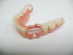 бюгель в стоматологии