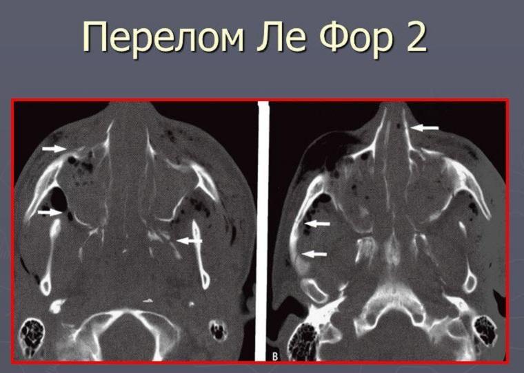 Перелом по Лефору 2