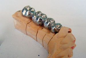 литые металлические коронки