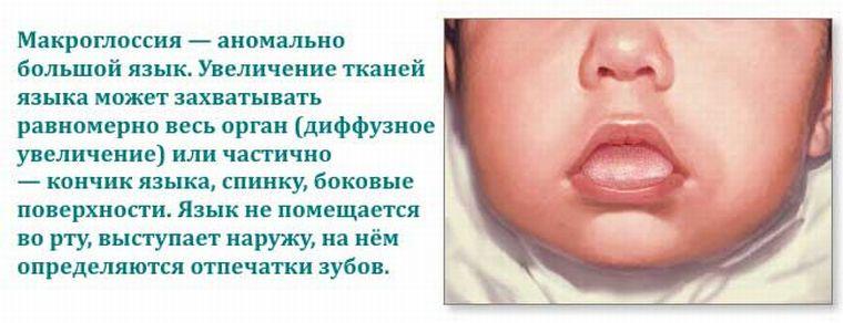 макроглоссия языка