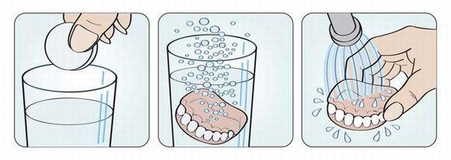 Как очищать протез