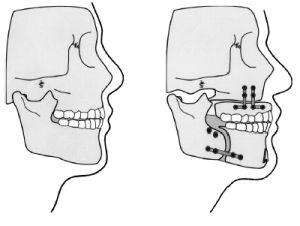 Остеотомия челюсти