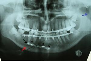 ангулярный перелом нижней челюсти