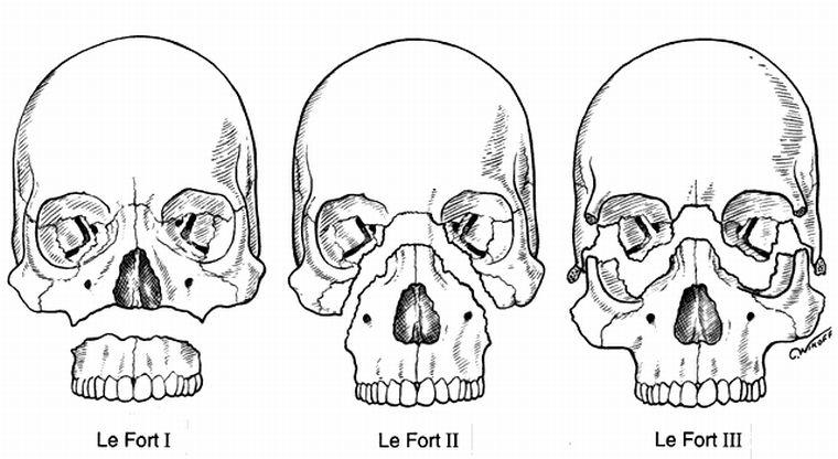 Классификация переломов по Лефор