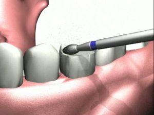 препарирование зубов