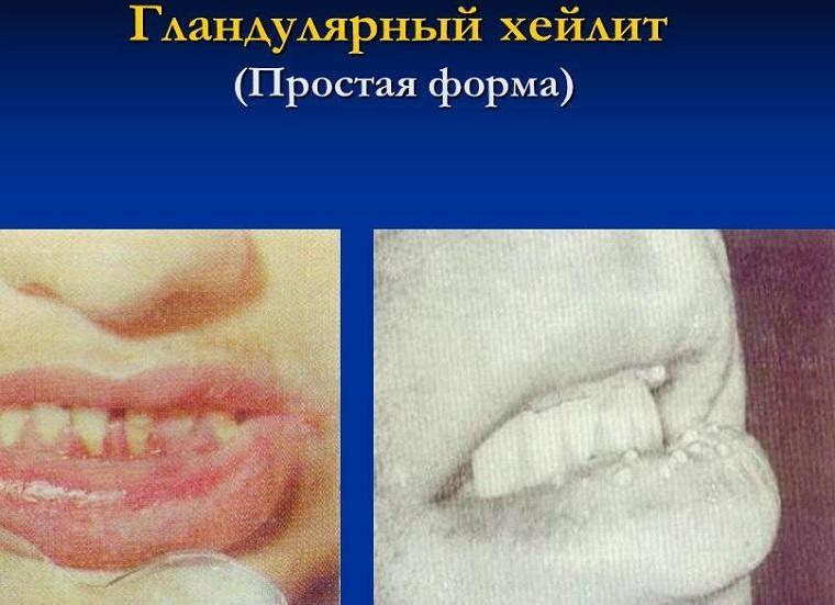 Симптомы хейлита