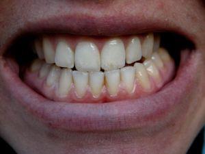 прмое смыкание зубов