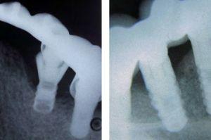 рентген снимок зубов