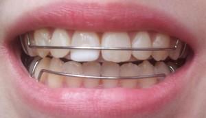 ретейнер для зубов