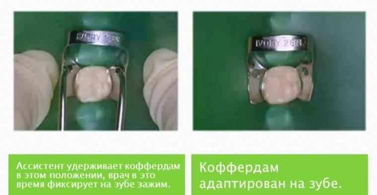 Завеса на зубах