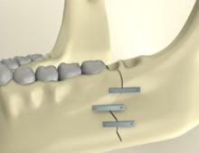 шина на челюсти