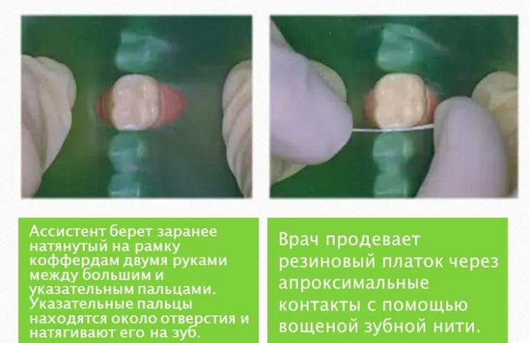 Наложение завесы на зубы