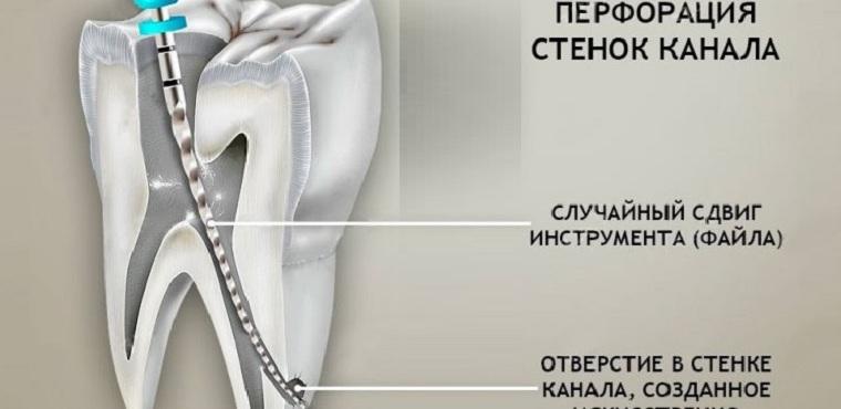 Отверстие в стенке зубного канала