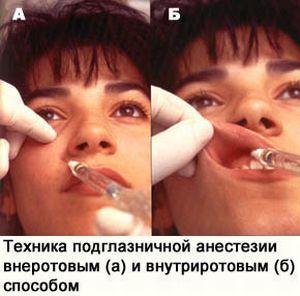 Техника подглазничной анестезии